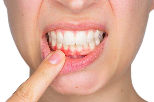 Links between gum inflammation and Alzheimer's
