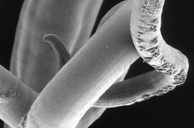 How the whipworm interferes with allergic type responses